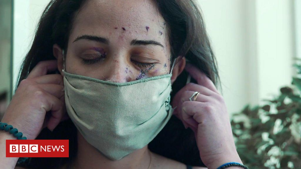 Fixing the scars of Beirut's explosion